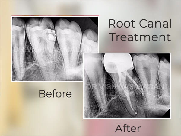 root-canal-treatment-nerul