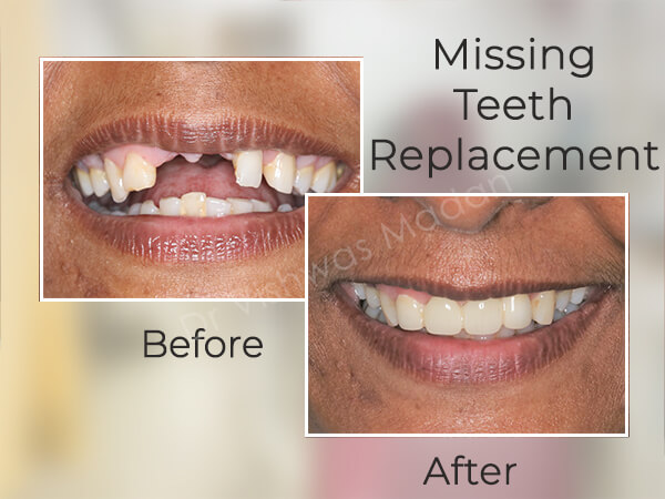 Replacement of Missing Teeth with Dentures