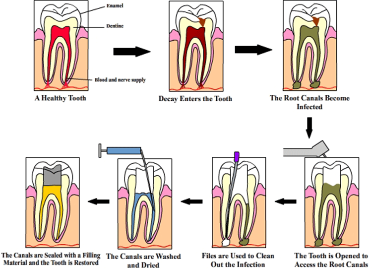 Root Canal Treatment In Seawoods