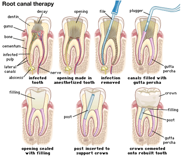 Root Canal Treatment In Nerul