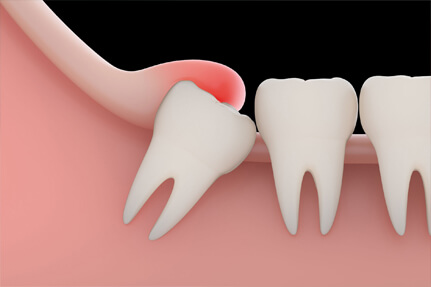 wisdom-tooth-removal-nerul